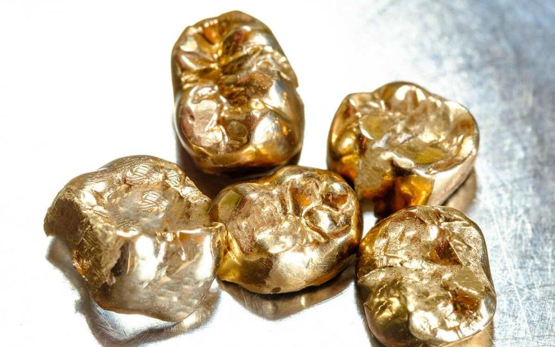 Zahngold zu Geld machen